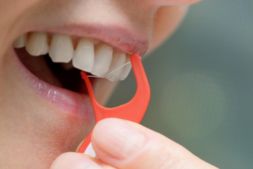 What is Gingivitis and How Can You Treat It?