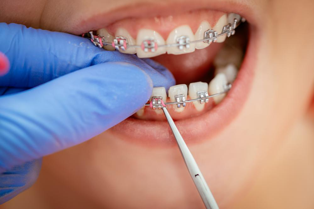 Top 4 Signs That You Need Braces